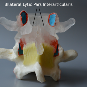 Bilateral-Lytic-Pars-Interarticularis