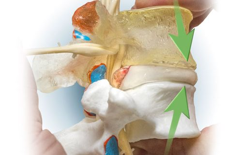 A professional lumbar spine model with a flexible and totally dynamic herniating (or prolapse) nucleus pulposus.