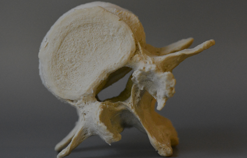 A lumbar spinal stenosis L4-5 model with natural degenerative details