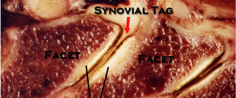 Synovial Joints, Synovial Fold