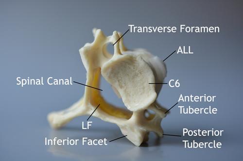 cervical, disc, anatomy, model