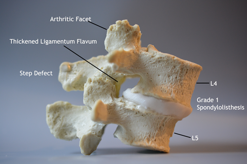 Degenerative Spondylolisthesis Model Lateral