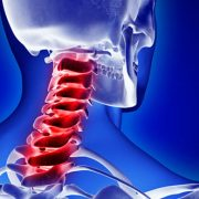 Treating Neck Pain