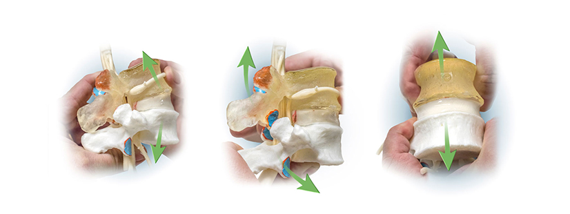 Lumbar Traction on the Spine