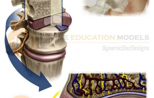 disc failure and nerves in the intervertebral disc graphic