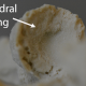 arthritic changes, lumbar models, cervical models