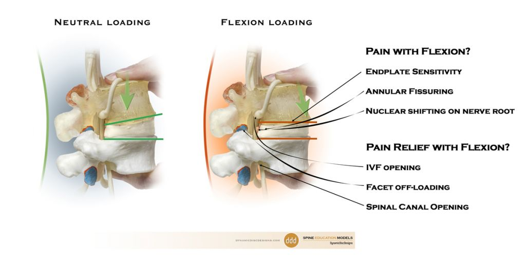 flexion and pain
