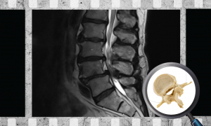 What's the Relationship Between MRI Findings & Clinical Symptoms in Patients with Suspected Lumbar Spinal Canal Stenosis_