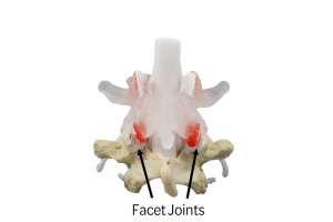 Facet Joints of the Lumbar Spine