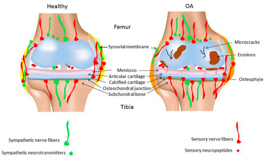pathology & pain in Peripheral Joint